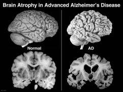 8a373c79197bc9379c3d682f132f4a1d--healthy-brain-healthy-life